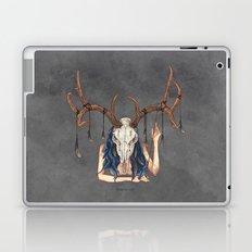 Long live the dead - Dear Laptop & iPad Skin