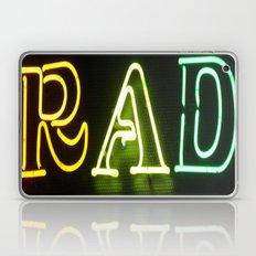 Neon is Rad Laptop & iPad Skin