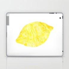 Life & Lemons Laptop & iPad Skin