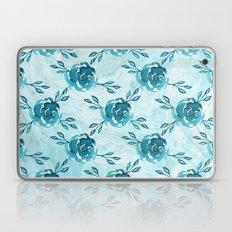 Blue Flower Marbles Laptop & iPad Skin