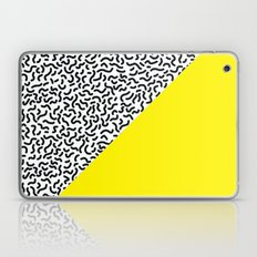 Pop Art Pattern 2 Laptop & iPad Skin