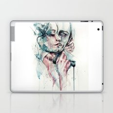 forever yours freckles Laptop & iPad Skin