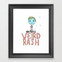 Weird Rash Framed Art Print