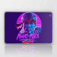 Knuc Kles Laptop & iPad Skin