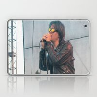 Julian Casablancas of The Strokes Laptop & iPad Skin