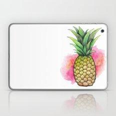 Sweet Pineapple Laptop & iPad Skin