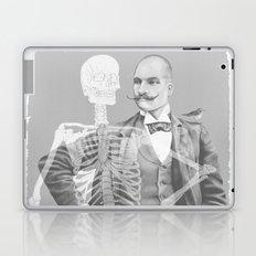 Crown Pursuit -- Black and White Variant Laptop & iPad Skin