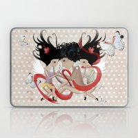 Doll Sunkissed Bipolar Love  Laptop & iPad Skin