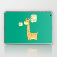 Giraffe problems! Laptop & iPad Skin