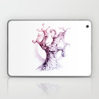 MusicTree Laptop & iPad Skin