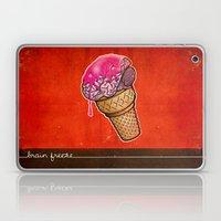 Brain Freeze! Laptop & iPad Skin