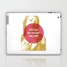 You set my heart on fire Laptop & iPad Skin