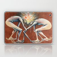 The Conjoined Collision … Laptop & iPad Skin