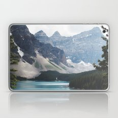 •lake Moraine • Laptop & iPad Skin