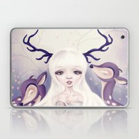 Deer: Protection Series Laptop & iPad Skin
