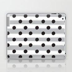 BLACK DOTS MEET WHITE STRIPES Laptop & iPad Skin