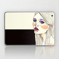 Freckles  Laptop & iPad Skin