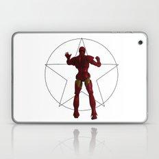 Archives Laptop & iPad Skin
