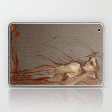 The Lost Laptop & iPad Skin