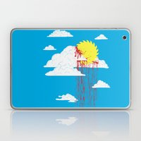 From a Lacerated Sky Laptop & iPad Skin