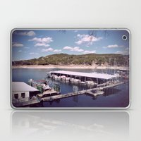 One Summer Day... Laptop & iPad Skin