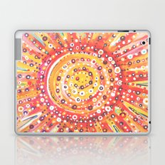 Sun Spots Laptop & iPad Skin