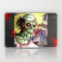zombie patient Laptop & iPad Skin