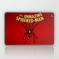 The Unmazing Spidered-Man Laptop & iPad Skin
