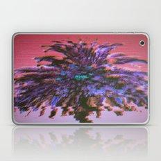 Palm Laptop & iPad Skin