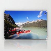 Lake Louise In Alberta, … Laptop & iPad Skin