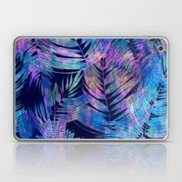 Waikiki Tropic {Blue} Laptop & iPad Skin