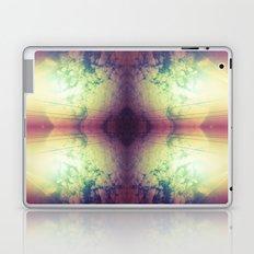 Part4 Laptop & iPad Skin