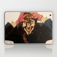 Joker HAHAHA Laptop & iPad Skin