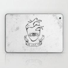 EYE LOVE YOU Laptop & iPad Skin