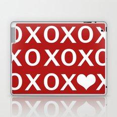 XO Laptop & iPad Skin