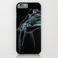 iPhone & iPod Case featuring Puppet Check Up by Joshua Kemble
