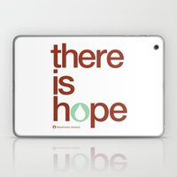 There Is Hope - Blood:wa… Laptop & iPad Skin