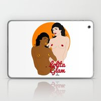 TWO STRANGE LOVERS - LOLITA GLAM Laptop & iPad Skin