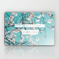 Live Your Life And Be Aw… Laptop & iPad Skin