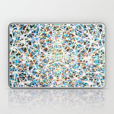 Color threads    Laptop & iPad Skin