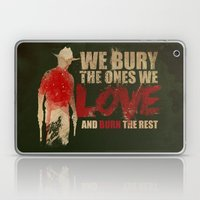 we bury the ones we love Laptop & iPad Skin