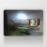 Cable TV Laptop & iPad Skin