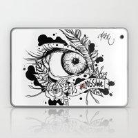 Possible Laptop & iPad Skin