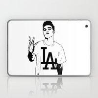 Panic on the streets of LA Laptop & iPad Skin