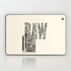 RAW Laptop & iPad Skin