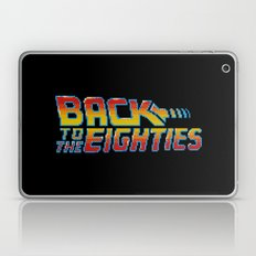 Back To The Eighties Laptop & iPad Skin