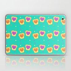 Sweet Lovers - Pattern Laptop & iPad Skin