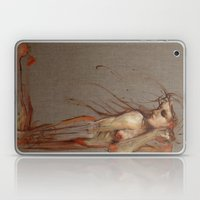 The Lost Laptop & iPad Skin