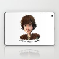A Little Hiccup Goes A L… Laptop & iPad Skin