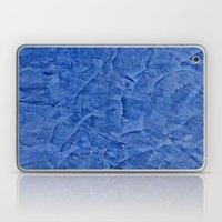 Vibrant Light Blue Plaster Laptop & iPad Skin